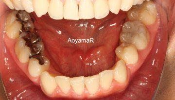 重度のそう生、小臼歯4本抜歯による治療