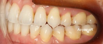 クラスⅢ、小臼歯4本抜歯による治療
