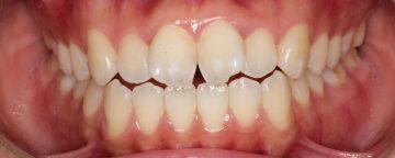 オープンバイトを伴う前歯の捻転