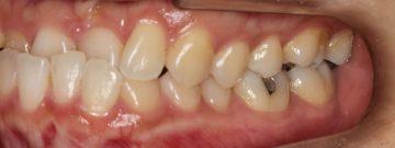 重度下顎前突の非抜歯治療