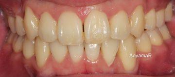 小臼歯4本抜歯ケース